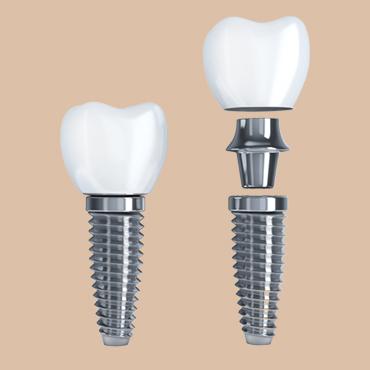 Poradnia Implantologia – implanty zębowe