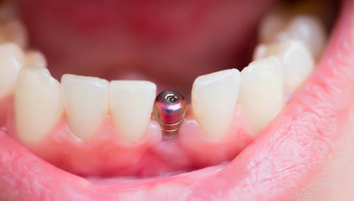 Zdjęcie Implantologia - poprawa jakości życia