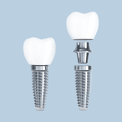 Obrazek Zabiegi stomatologiczne